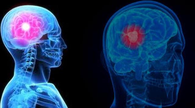 Gejala dan penyebabl Kanker Otak