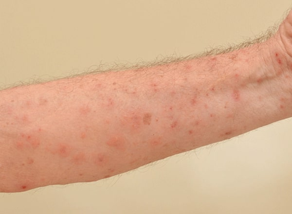 Scabies rash effective treatment with home remedies.