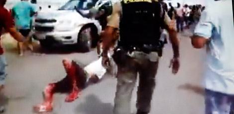 Manifestante baleado por PM começa a acordar da sedação