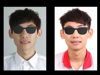 治療前後臉型差異