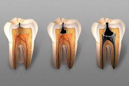 Inilah Masalah Serius Yang Disebabkan Gigi Berlubang