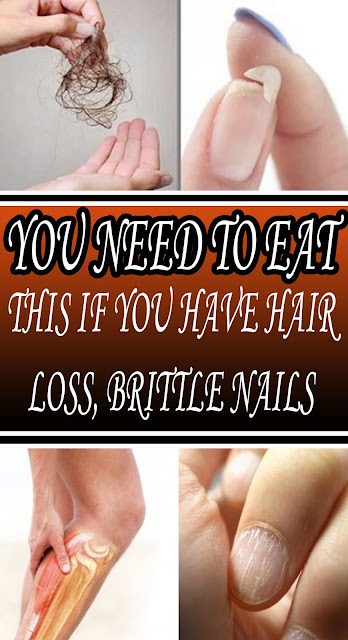 #YOU NEED TO EAT THIS IF #YOU HAVE HAIR LOSS, #BRITTLE NAILS OR #YOU'RE NOT SLEEPING#Health