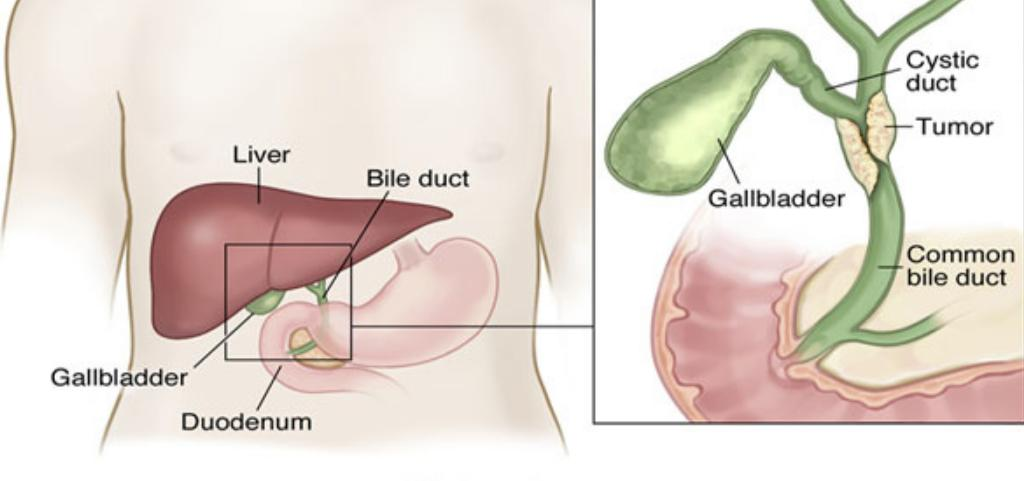 Gallbladder Cancer Life Expectancy Stage 4