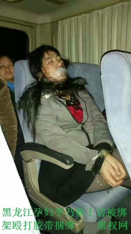 張敬同:就黑龍江孕婦李乃秋上訪被綁架毆打膠帶捆綁事件報警情況的通報