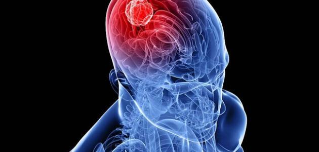 ما هي اعراض ورم الدماغ وما اسبابه وكيفية الوقاية
