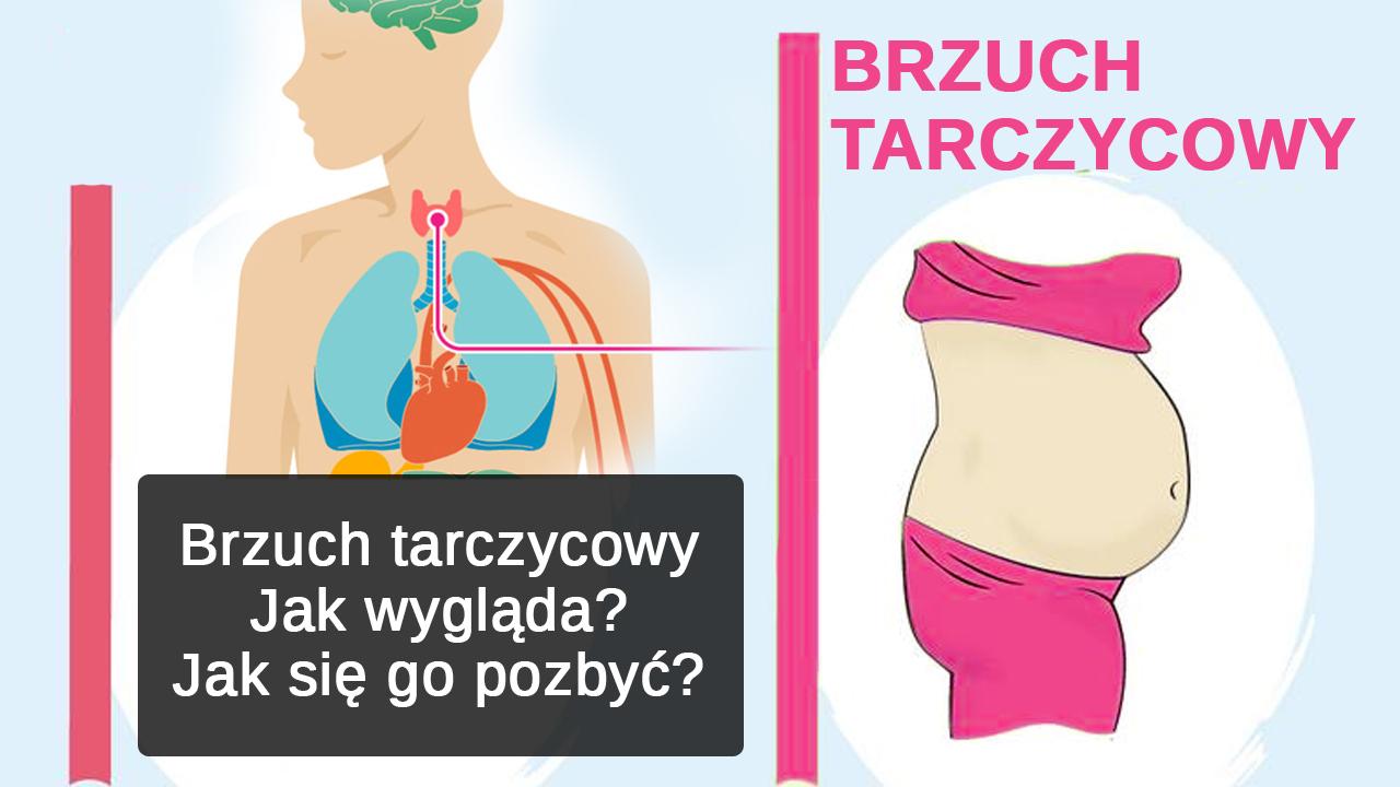Brzuch tarczycowy - jak wygląda? Jak się go pozbyć?