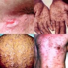 Daun Sirih Obat Sifilis