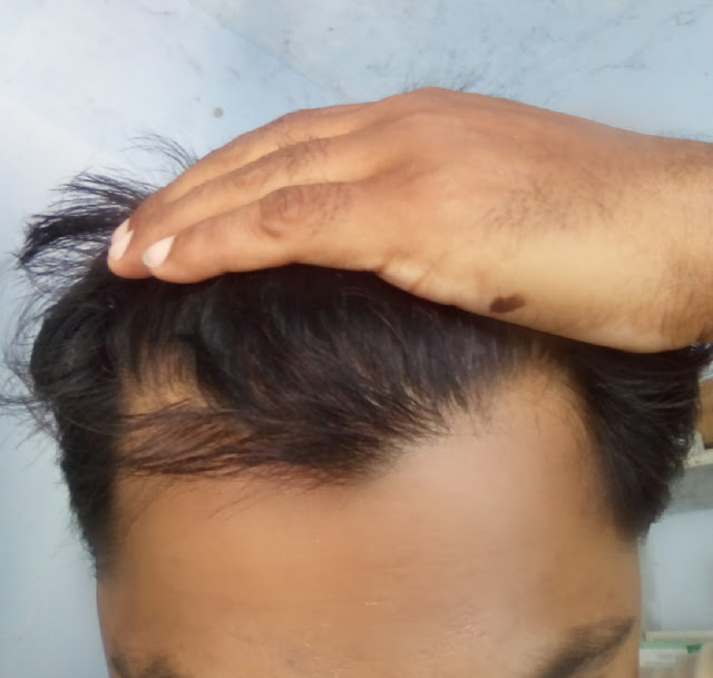 8 Home Remedies For Hair Fall and Regrowth