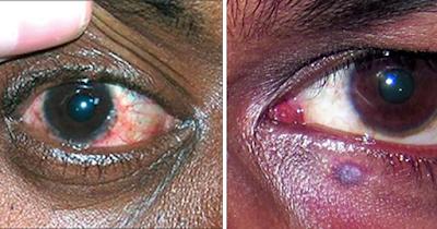 HIV eye symptoms