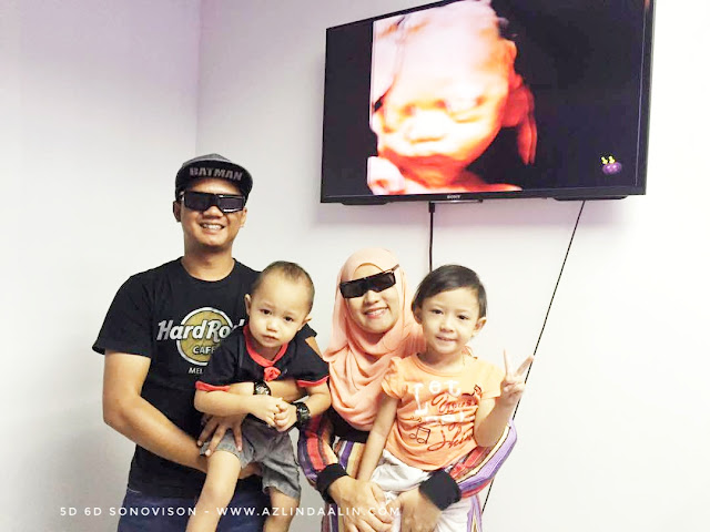 SCAN BABY 2D 3D 4D 5D 6D MURAH DI SELANGOR | SONOVISON