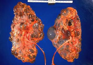 Hari ini ramai yg rosak buah pinggang akibat sekian lama jd hamba ubat2 hospital..