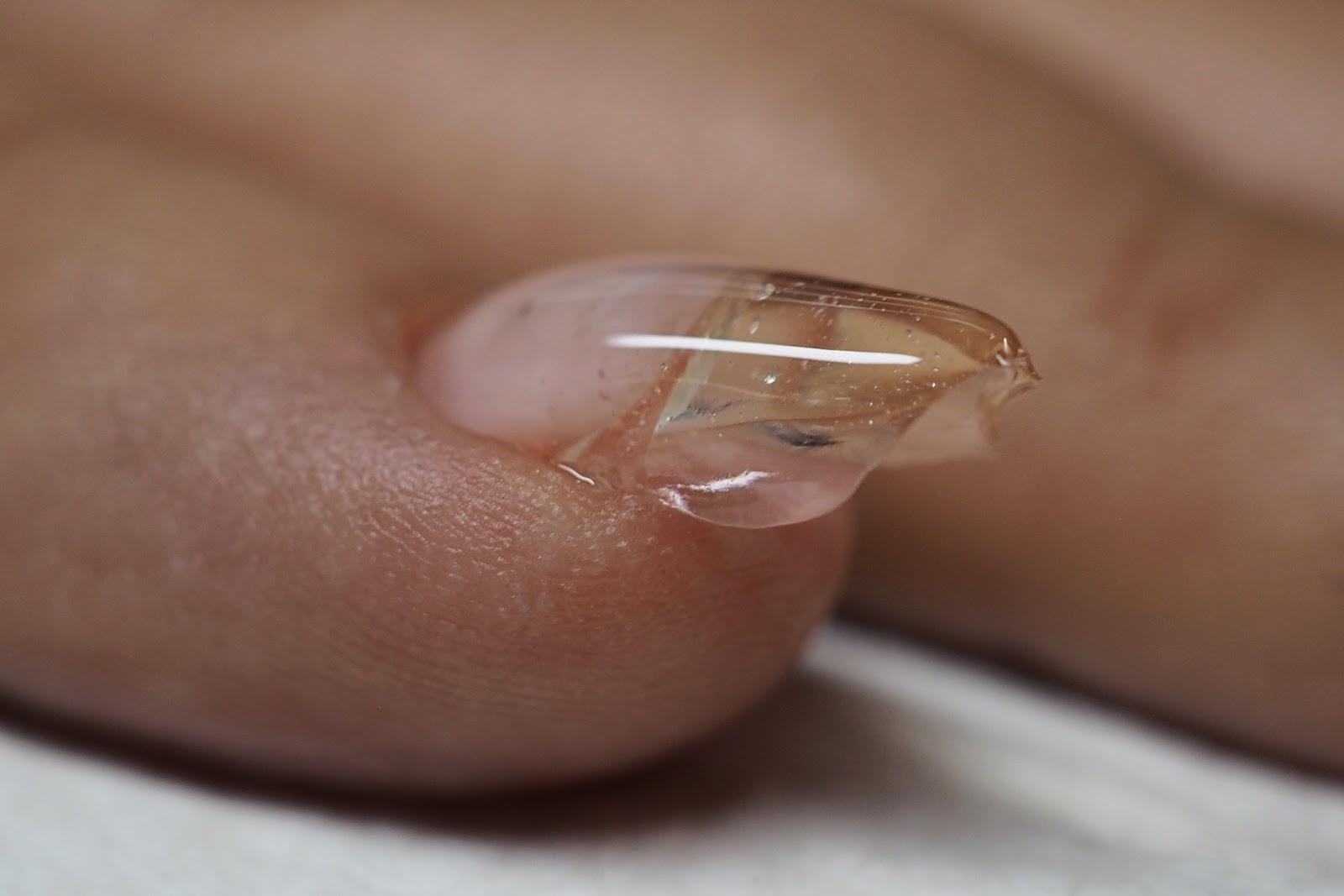 problematyczne paznokcie