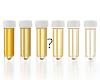 10 Urine Colors And What It Says About Your Health