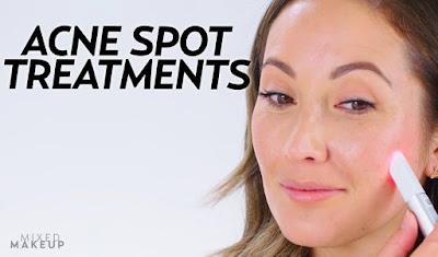 Whісh Acne Treatments Work