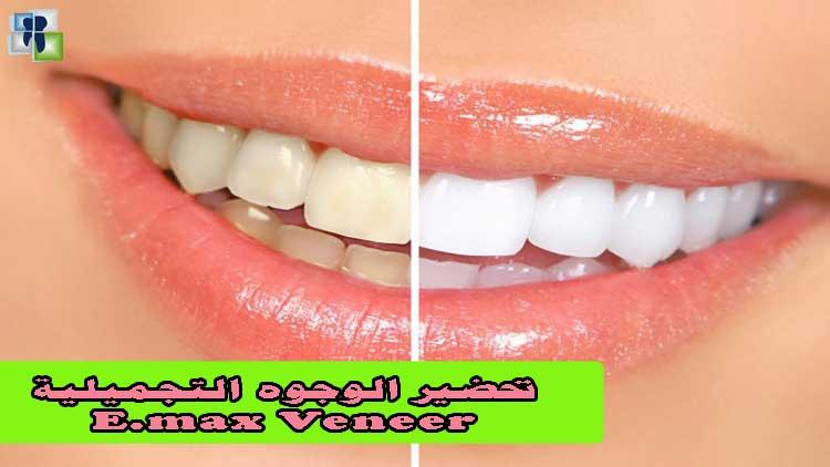 طريقة تحضير و تركيب الوجوه التجميلية للأسنان الايماكس emax veneer