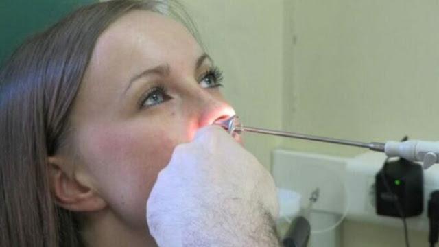 У жительницы Самары в носу выросли зубы