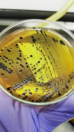 Ágar Salmonella Shigella com crescimento de Salmonella spp.
