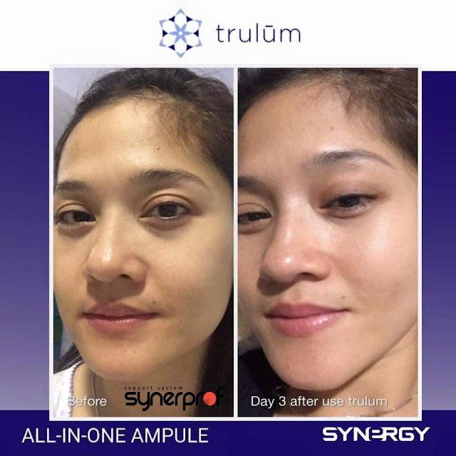 Jual Serum Penghilang Keriput Trulum Skincare Banjar Agung