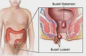 Image result for buasir ketika hamil