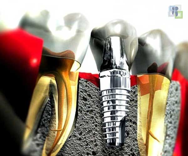 مفهوم زرع الأسنان