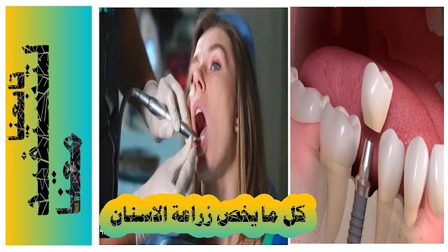 كيف تتم زراعة الاسنان في العيادات،جراحة زراعة الاسنان،تعرف على عيوب و فوائد زراعة الاسنان في شارقة، زراعة الاسنان في دبي من افضل التكنولوجيا،سعر زراعة الاسنان في العين دار زين