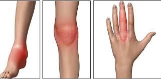 التهاب-المفاصل