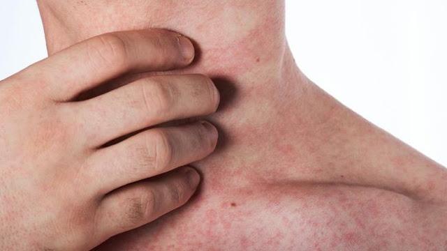 Gejala Baru Virus Corona: Gatal-gatal dan Kulit Merah