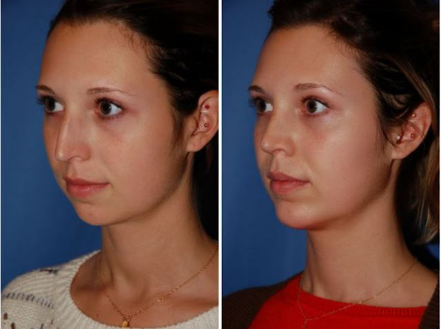 chin-augmentation-before-after