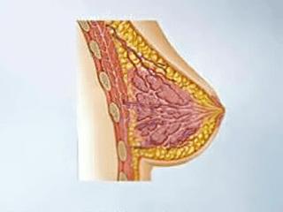 Gambar Jenis Mastektomi Untuk Penderita Kanker Payudara