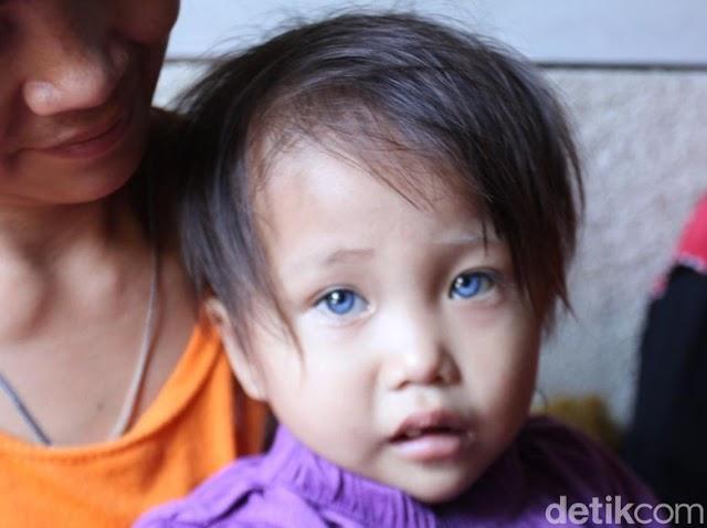 Viral Mata dan Rambut Balita Asal Bandung Kerap Berubah Warna