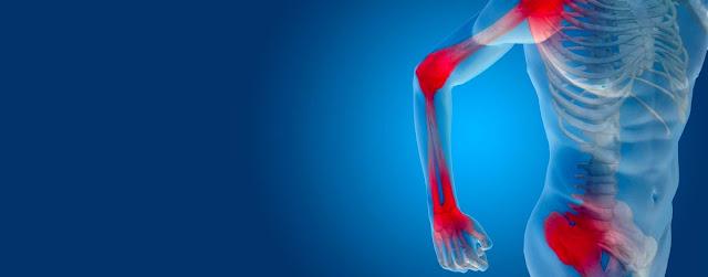 Artritis y dolor