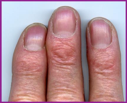 SEXUALIT: La longueur des doigts peut-elle prdire l