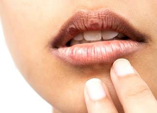 Cara mengatasi bibir kering dan pecah-pecah