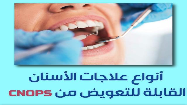 علاجات الأسنان القابلة للتعويض من  cnops - نسبة التعويض و إجرأت تكوين الملف + أسباب رفض التعويض