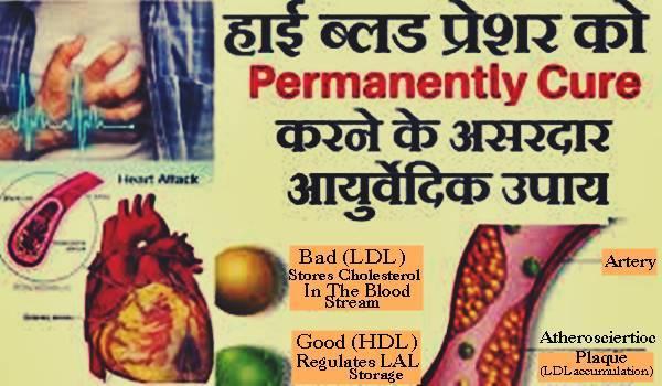 ब्लड प्रेशर इन हिंदी ⇨ Blood Pressure In Hindi