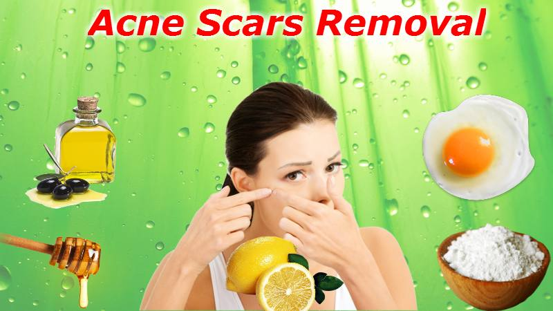 Remove Acne Scars | The Girls Beauty Bible