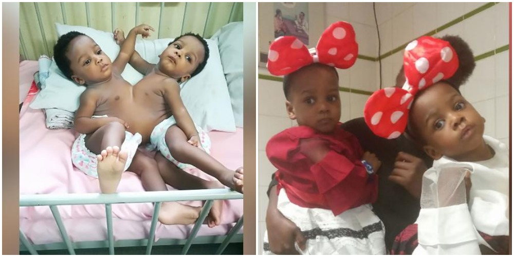 Nigerian conjoined twins successfully separated by 78-member team in Abuja