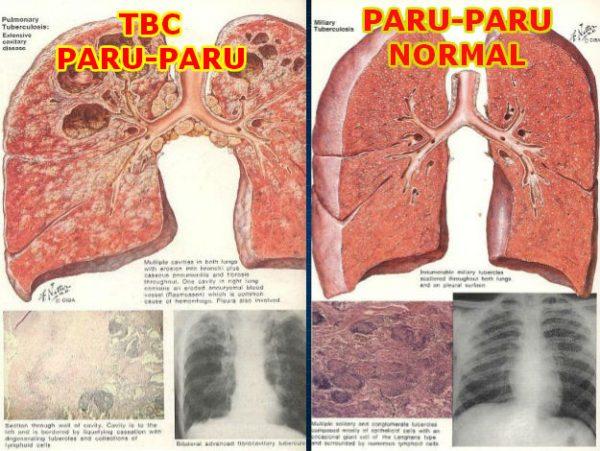 cara mengatasi penyakit TBC