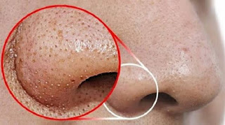 how to remove blackheads and whiteheads permanently