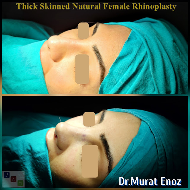 Before After Thick Skinned Natural Female Rhinoplasty