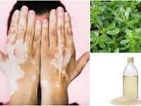 Membuat Ramuan Herbal untuk Obati Vitiligo dari Prof. H.M. Hembing Wijayakusuma