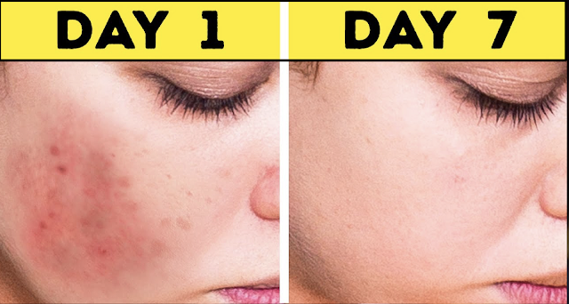 Easy Method To Get Rid Of Brown Spots On Face And Skin Naturally And Permanent