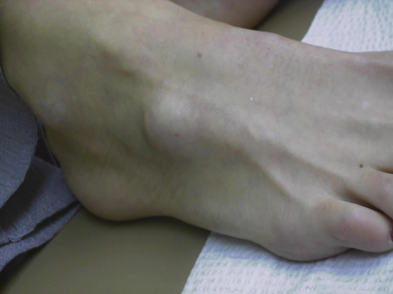 soft foot bump