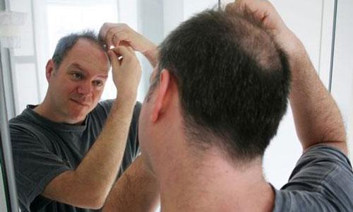 kebotakan rambut permanen
