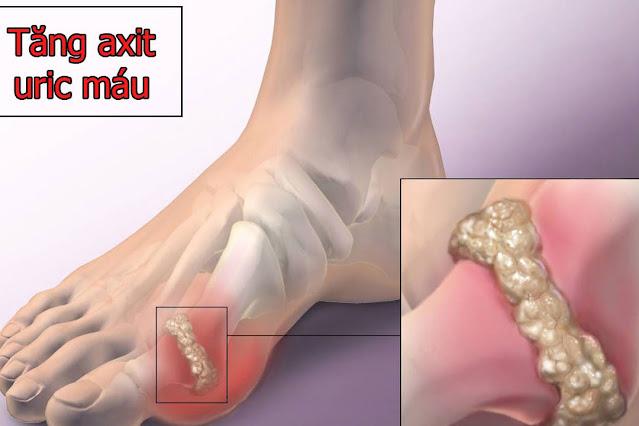Nước kiềm và tác dụng tuyệt vời đối với bệnh Gout