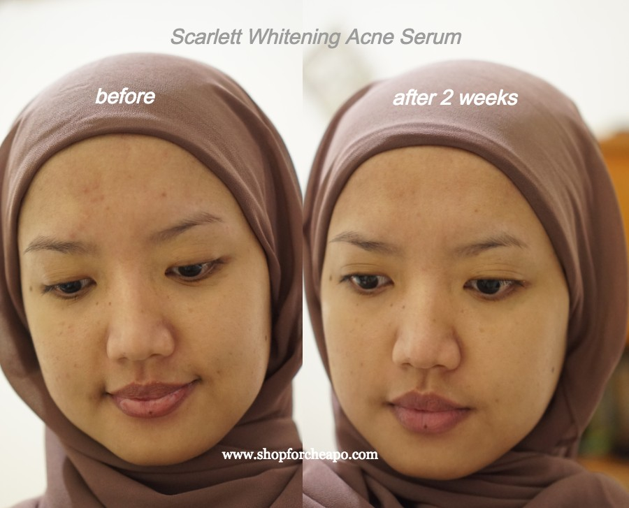 foto before after 3 minggu pemakaian acne serum