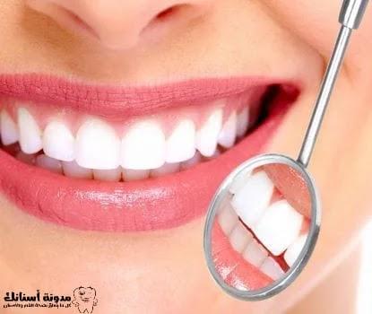 كيفية جعل الأسنان بيضاء كالثلج.