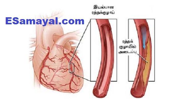 இரத்த குழாயில் ஏற்படும் அடைப்பை தடுக்க