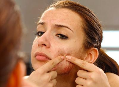 Acne,pimple, zits,acne vulgaris