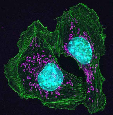 Skin_cancer_cells_in_mouse